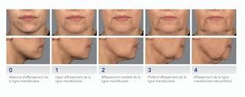 traitement de l ovale du visage - Dr Penna6 Saint Germain en Laye yveline